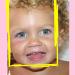 wat kun je doen bij doorkomende tandjes